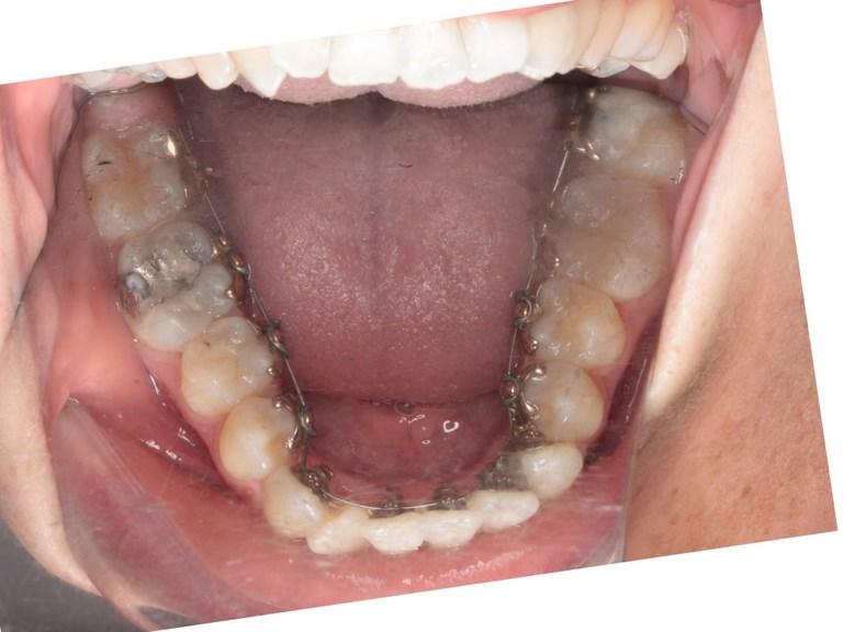 Invisalign: Appareils dentaires alternatifs pour adolescents