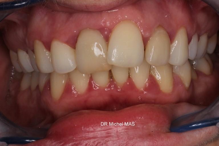 Piercing Et Orthodontie